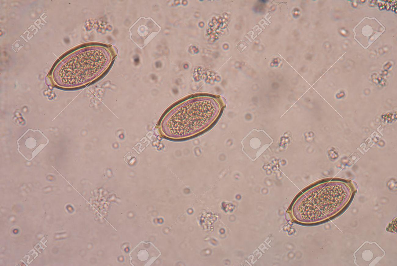 Trichocephalosis biohelminthiasis