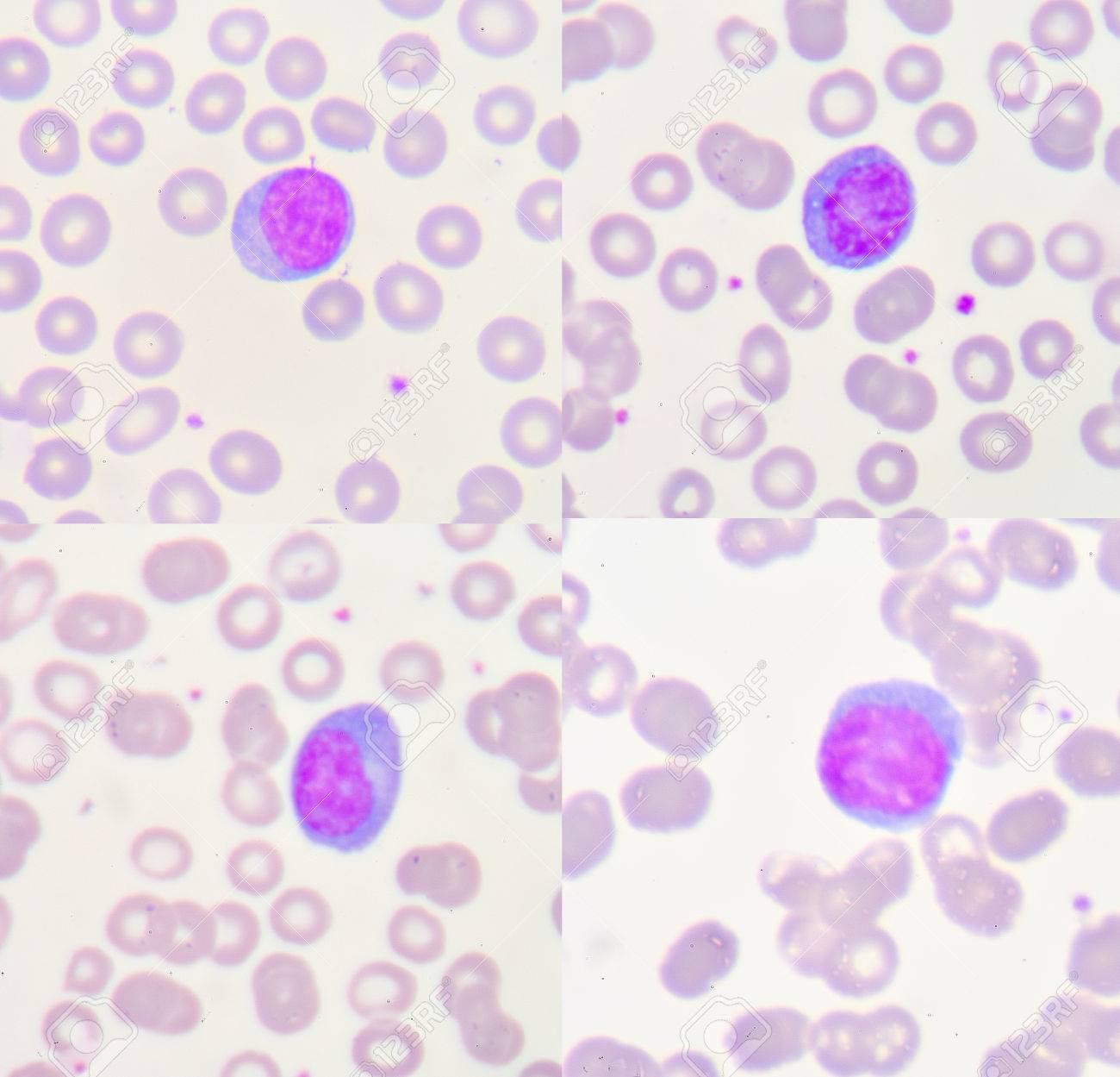 Foto de archivo - Linfocitos reactivos son linfocitos que se convierten en  grandes como resultado de la estimulación de antígeno. Típicamente pueden  ser más ... 1118f5d3af