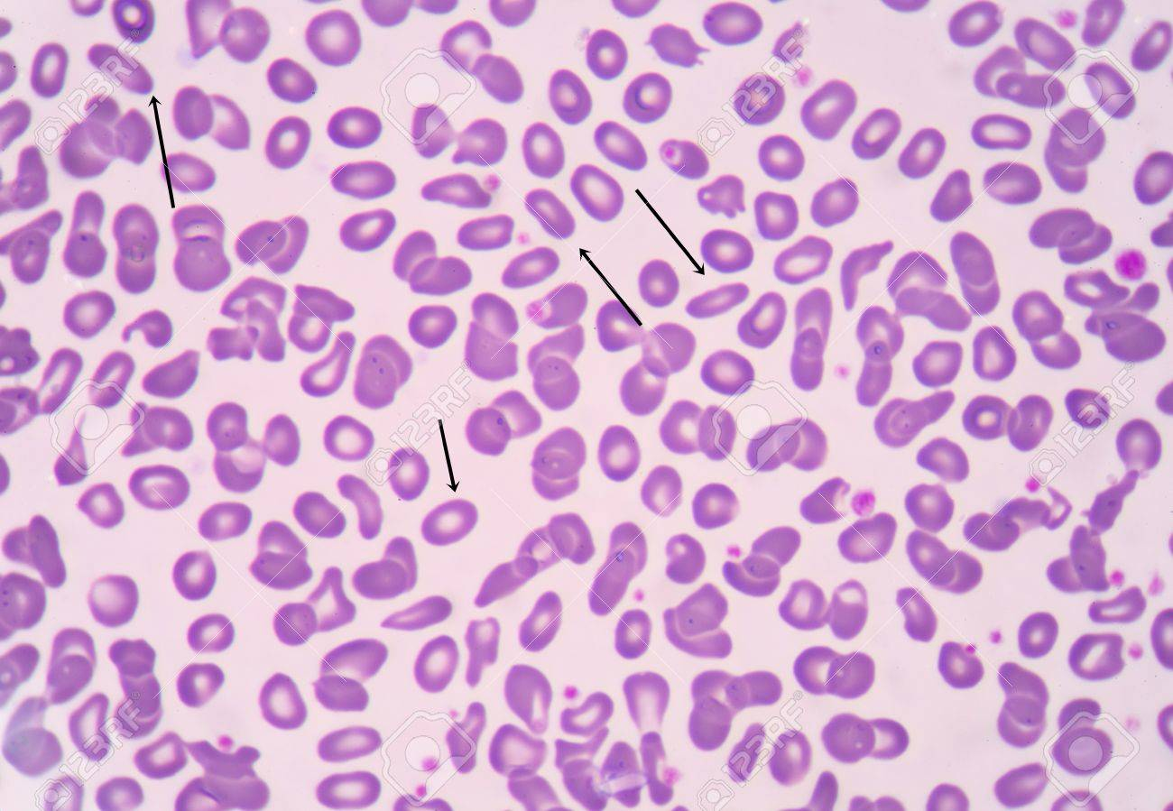 赤血球 Ovalocyte。長方形または...