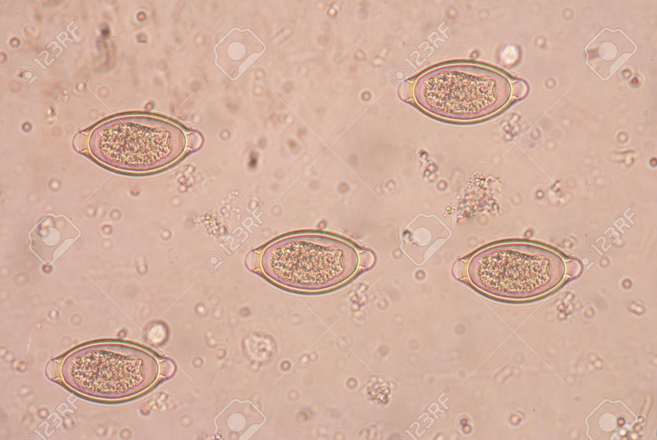 Trichocephalosis geohelminth. A férgek tünetei az emberekben, a jelek és az otthoni kezelés során