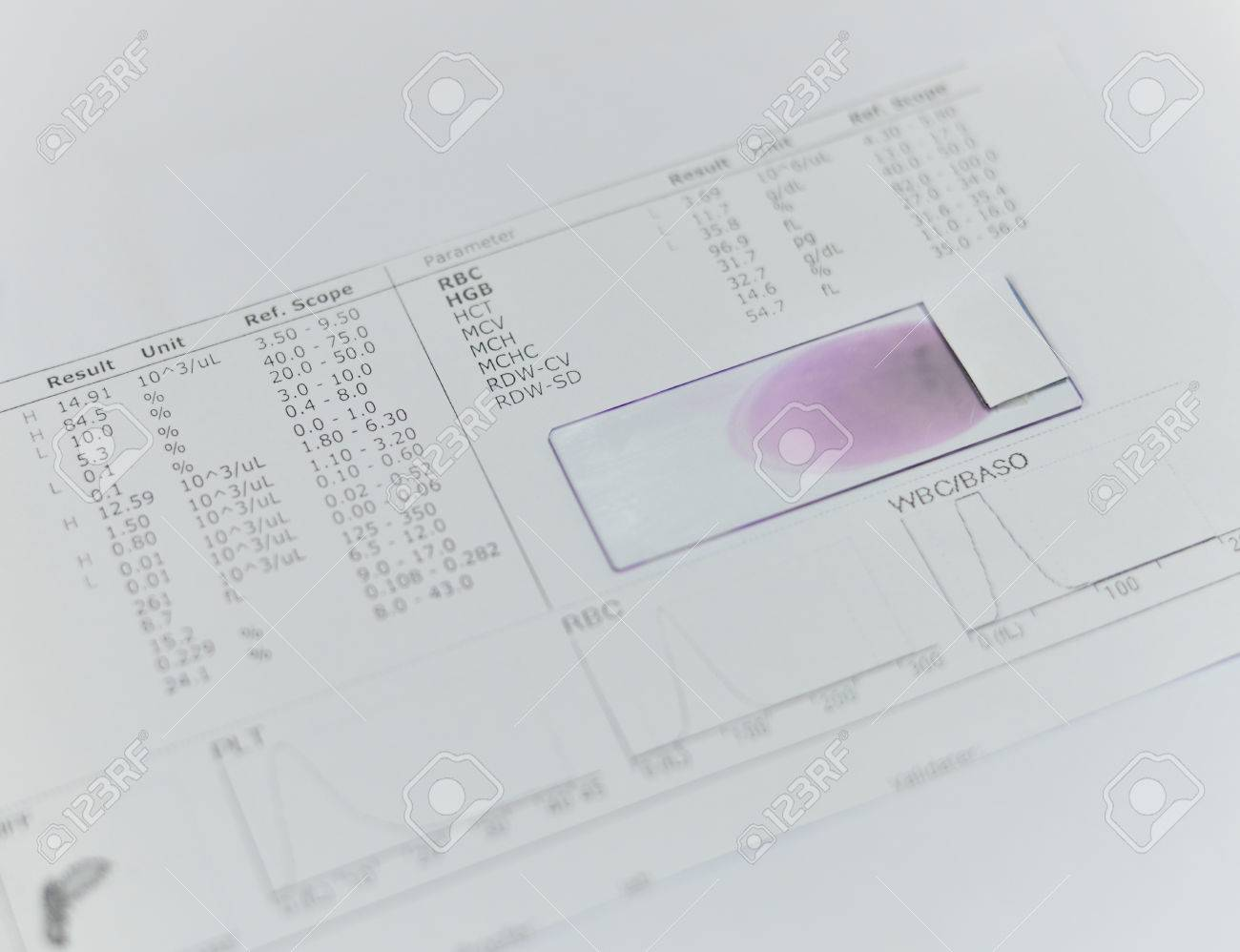 Sangre de rbc analisis