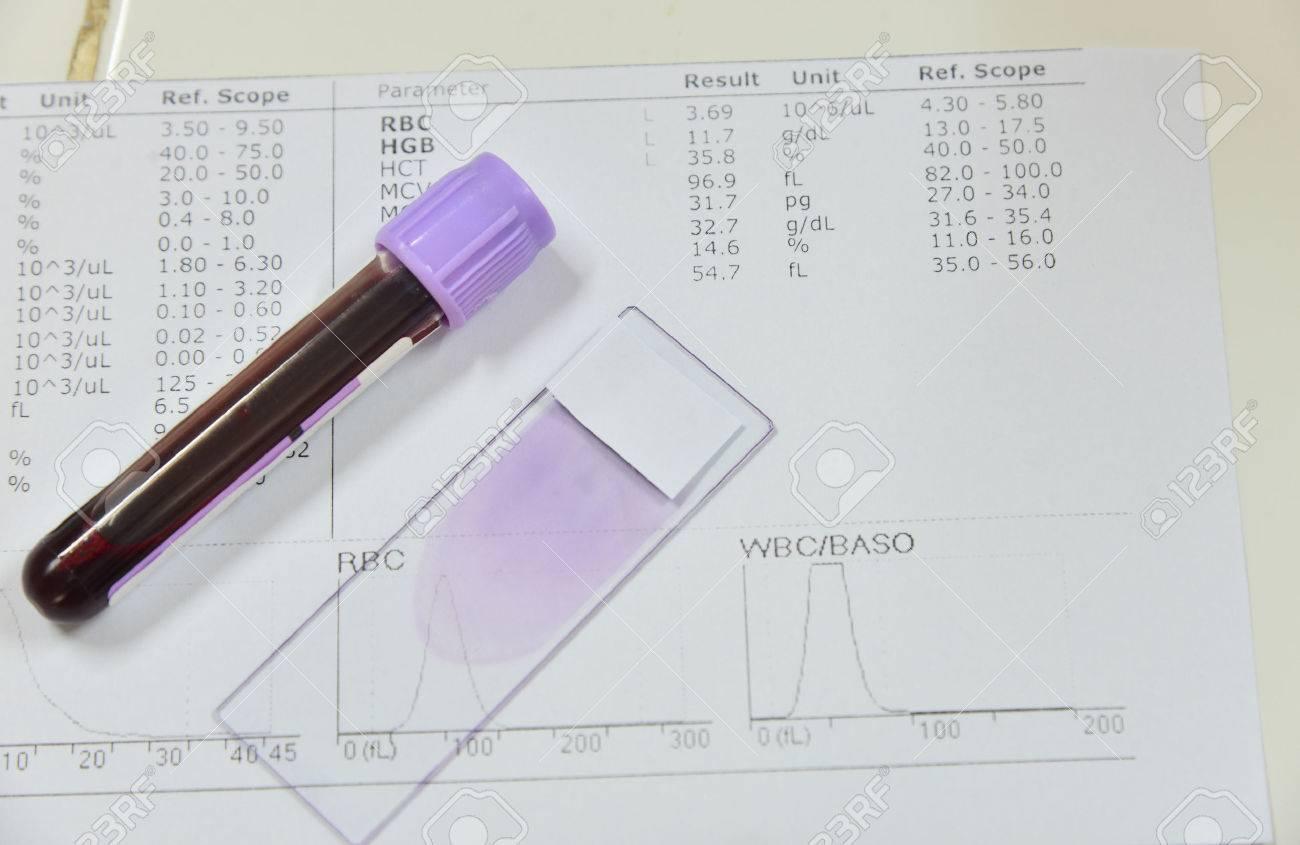 Rbc analisis de sangre