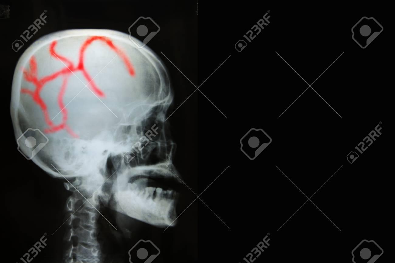 Vista Del Cráneo De La Radiografía De La Película Del Ser Humano En ...