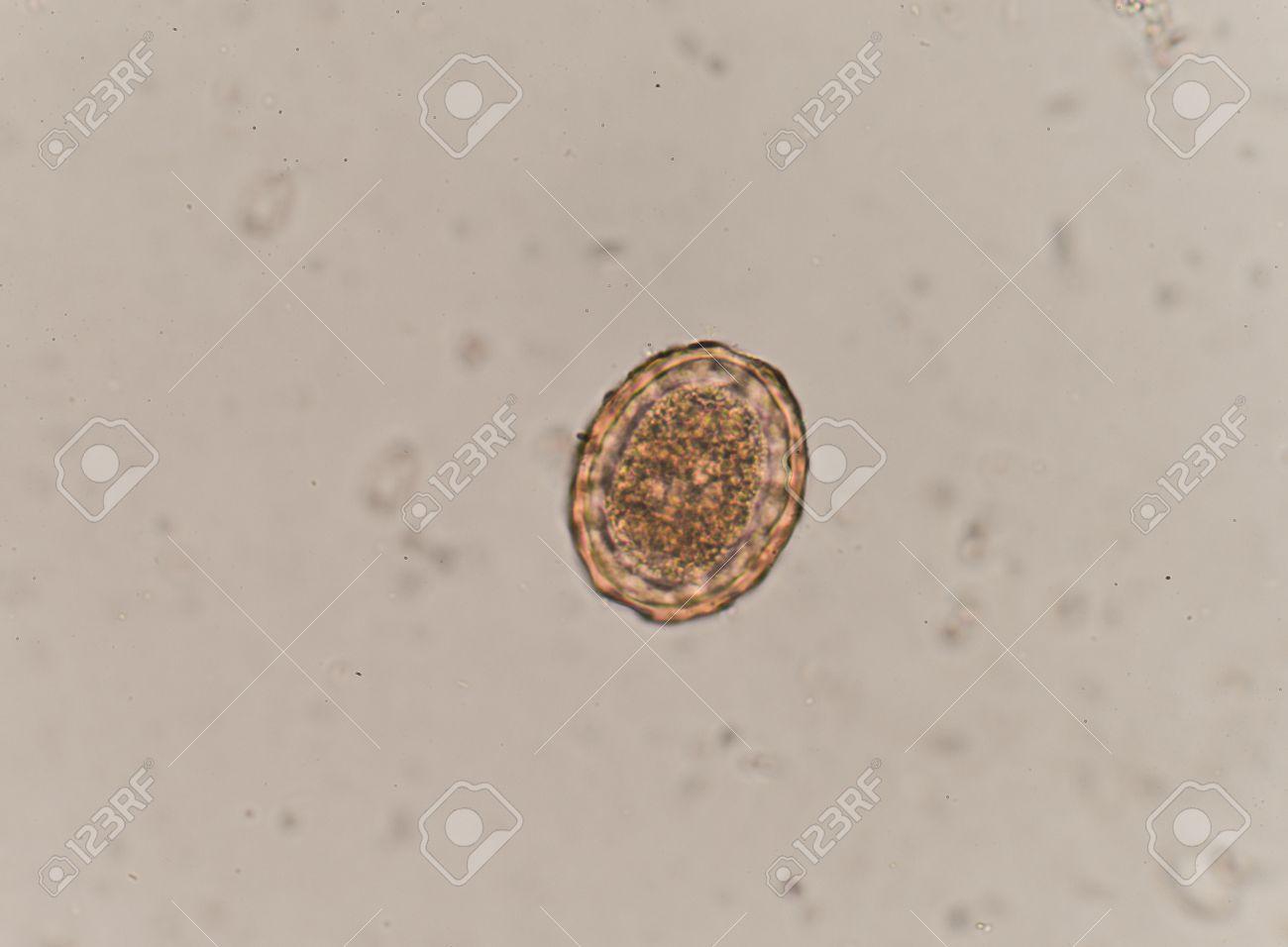 lumbricoides in human intestine
