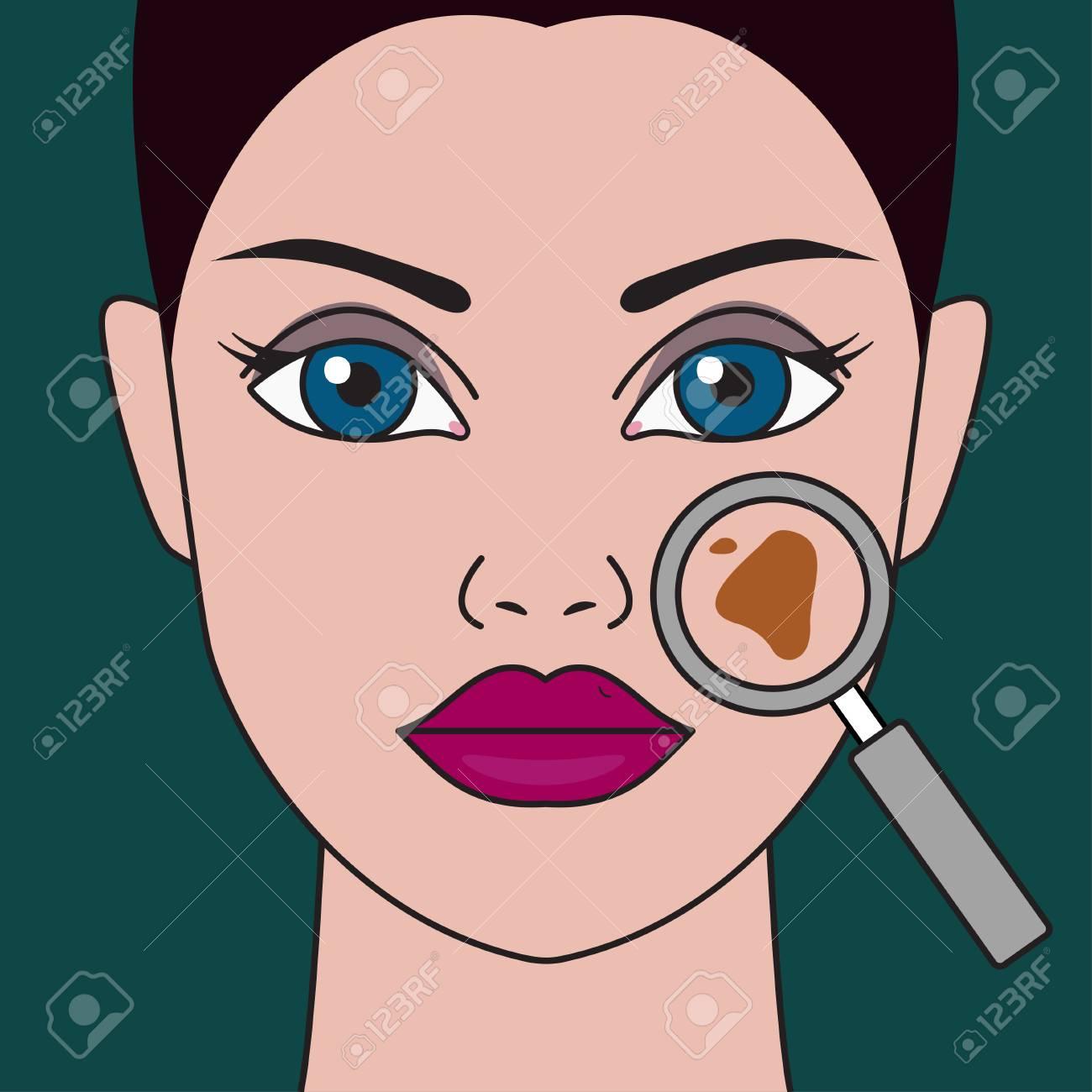 Pigment spot on female face under magnifying glass. Vector illustration - 93159088