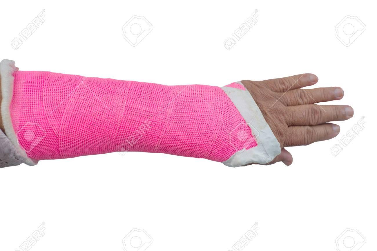 Arm gips gma.amritasingh.com