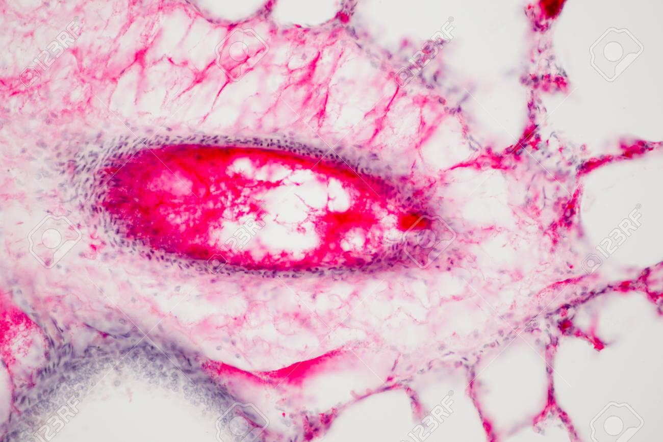 Tejido Pulmonar Humano Bajo La Vista De Microscopio. Los Pulmones ...