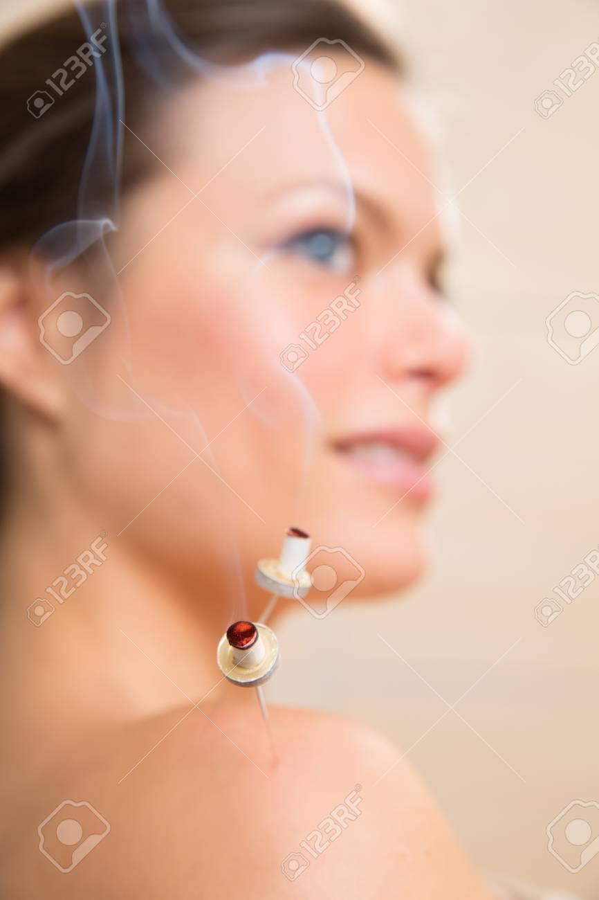 moxibustion acupunture needles heat on woman shoulder closeup Stock Photo - 19636927