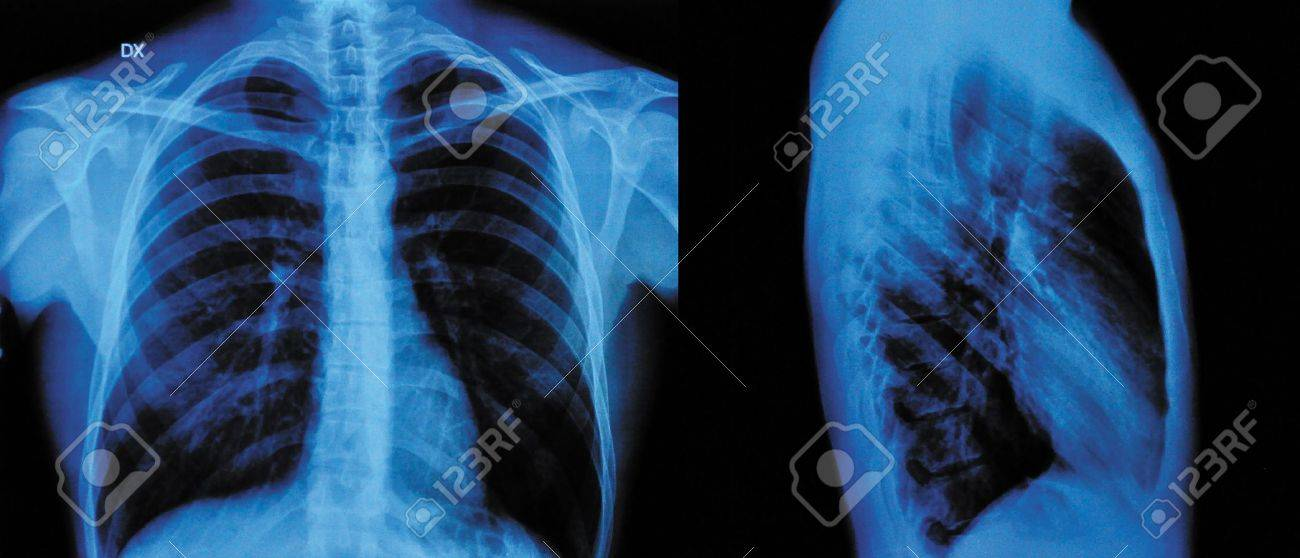 X-Ray Image Of Human Chest front view and lateral view Stock Photo - 12555027