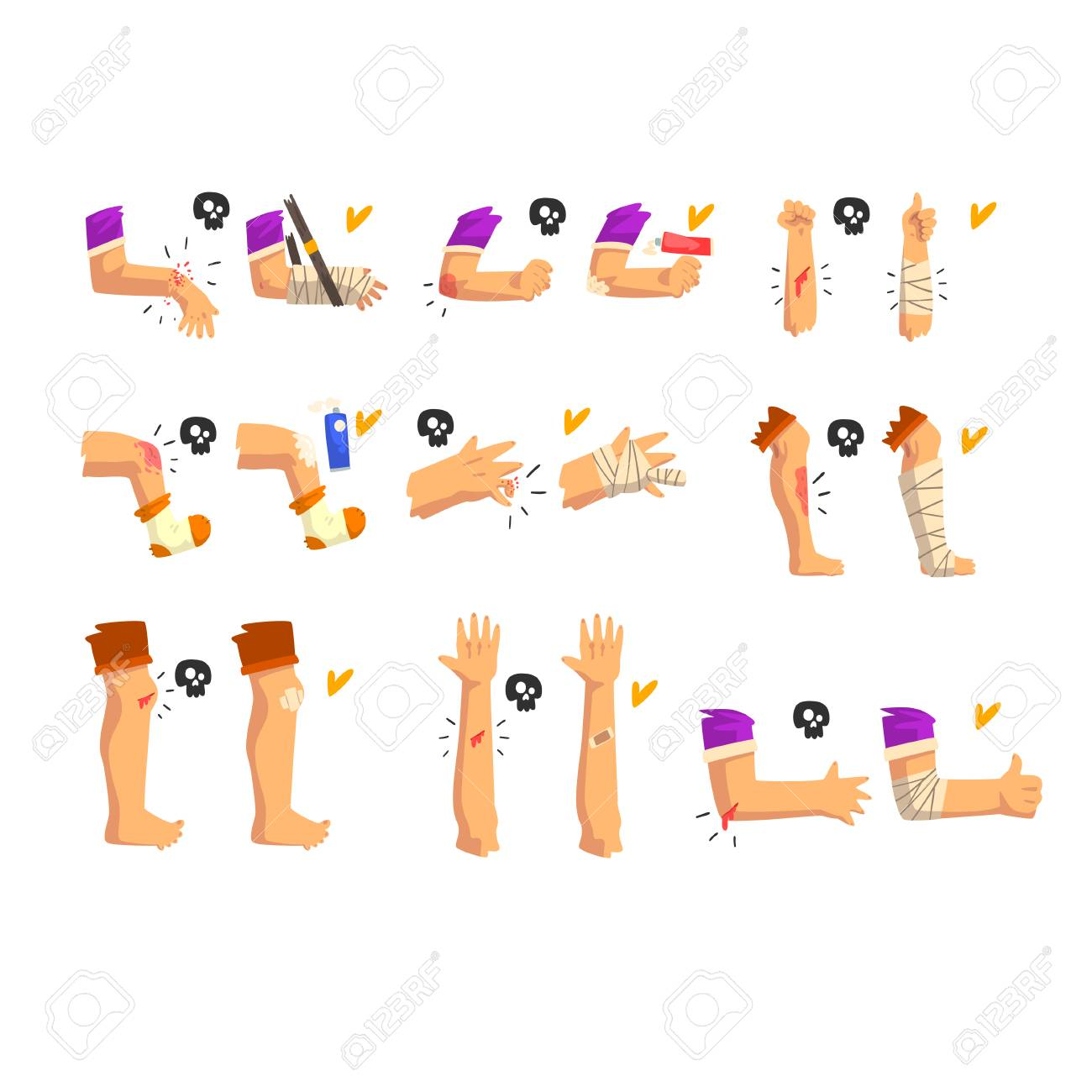 Damaged body parts set, injuries and fractures of the arms and legs, first aid and treatment vector Illustration isolated on a white background. - 126540522