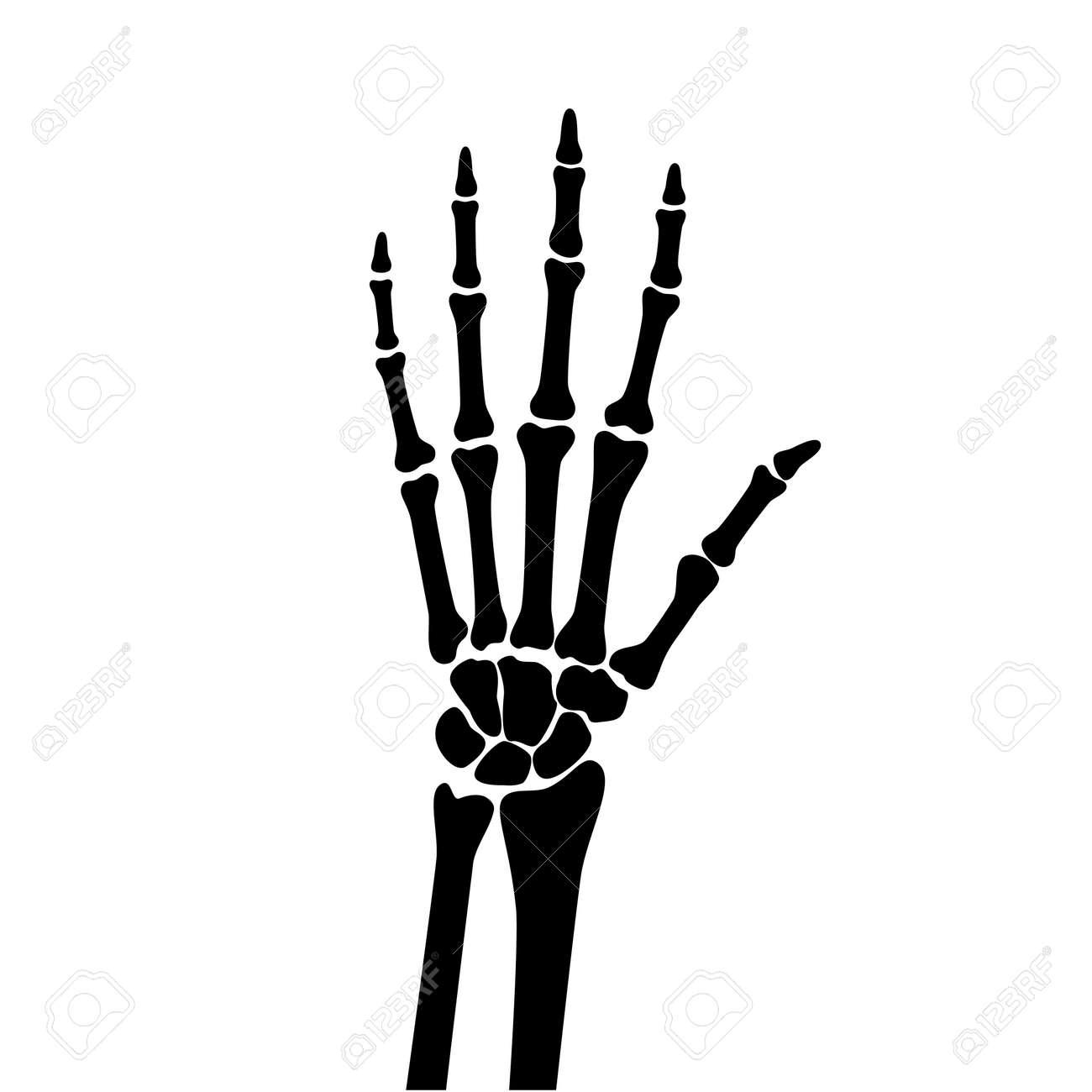 Arthritis x ray - 154619021