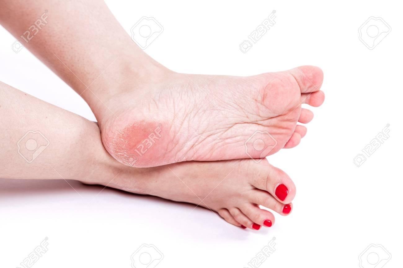 Weibliche Beine Mit übertrocknete Dehydrierte Trockene Haut Auf Den