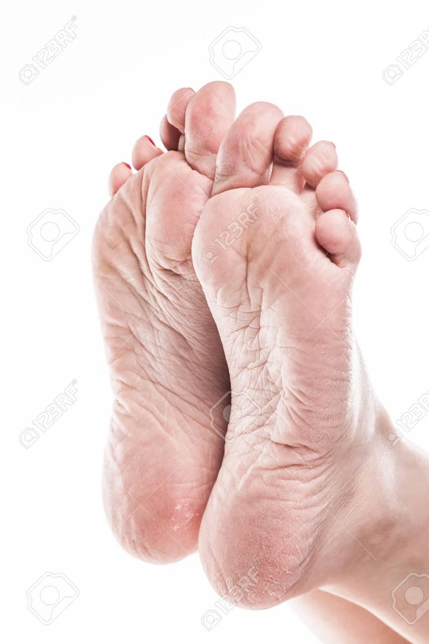 piel reseca en pies