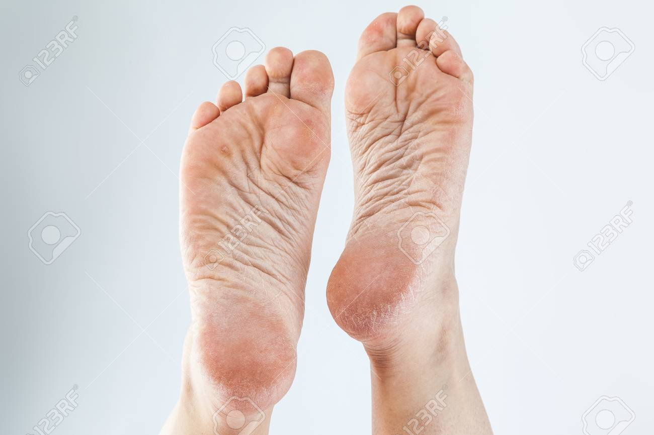 dry dehydrated skin on the heels of female feet with calluses - 89331723