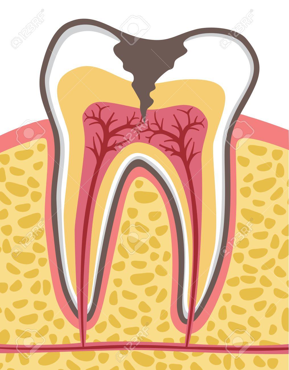 Sección Transversal Del Diente (anatomía) Con La Caries Dental ...