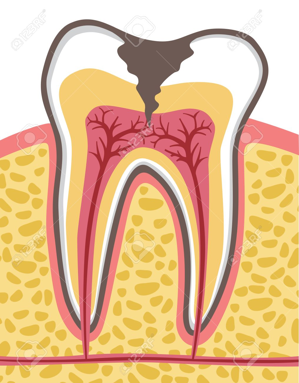 Tooth Cross Section (anatomy) With Dental Caries Royalty Free ...