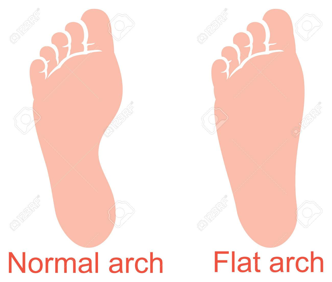 Human Anatomy Flat And Normal Arch Vector Illustration Royalty
