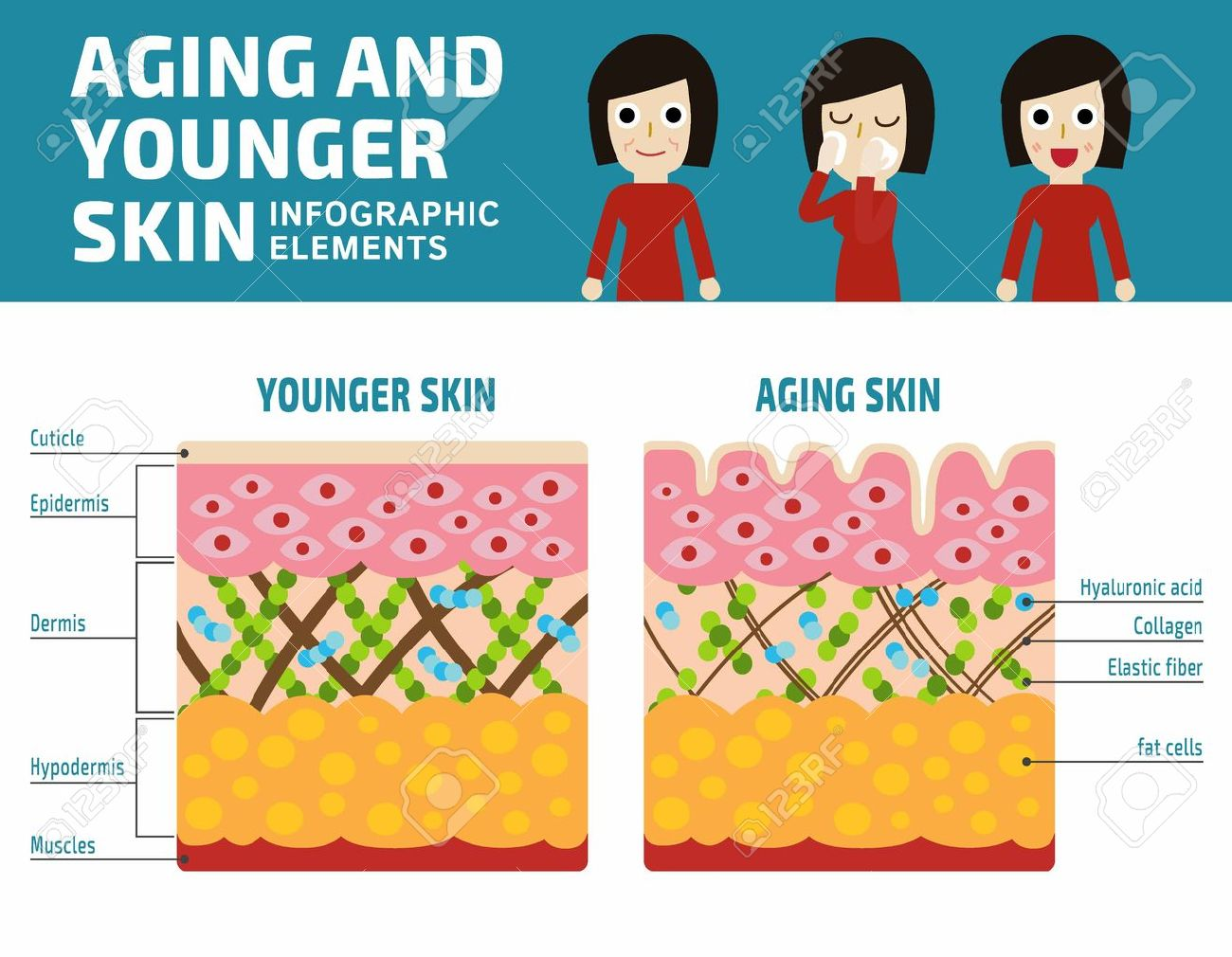 Younger skin and aging skin Infographic elements.Elastin and collagen flat vector illustration.Banner younger skin and aging skin showing thedecrease in collagen and broken elastin in older skin - 57635295