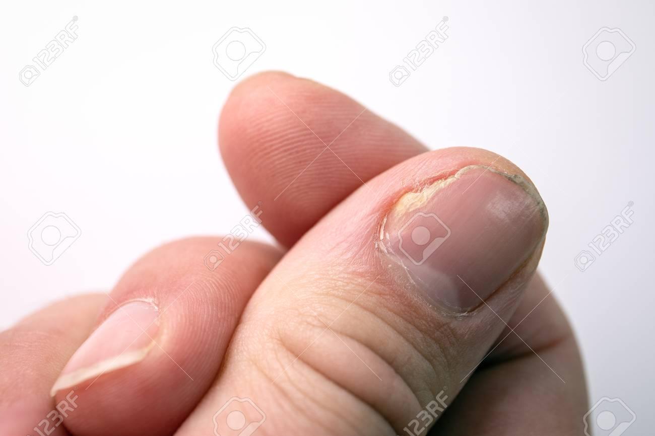 finger fungus treatment