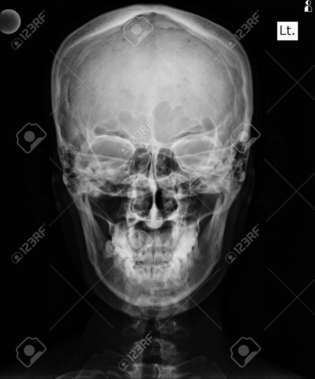 Front Face Skull X Ray Image Stock Photo Picture And Royalty Free