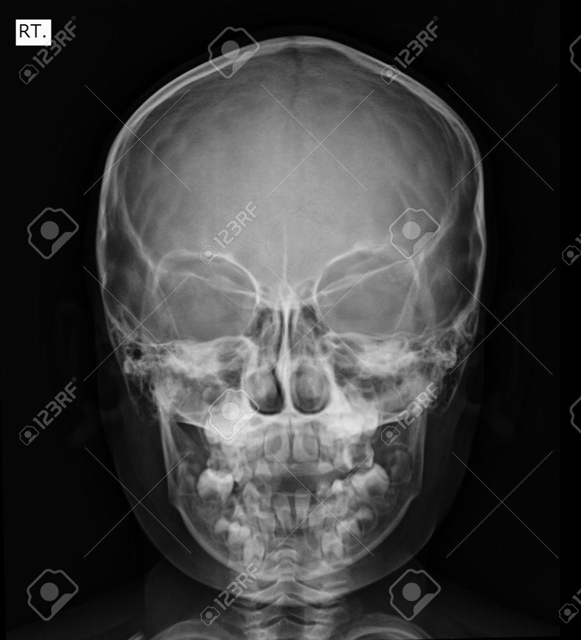 Cráneo, La Cara Frontal Imagen De Rayos X Fotos, Retratos, Imágenes ...