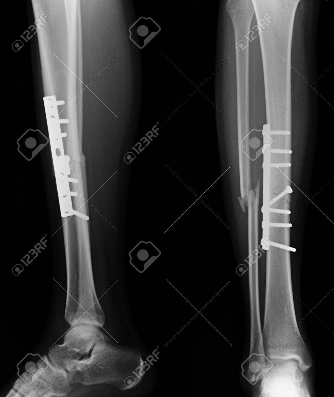 X Rays Image Of Leg Fracture Patients Stock Photo Picture And