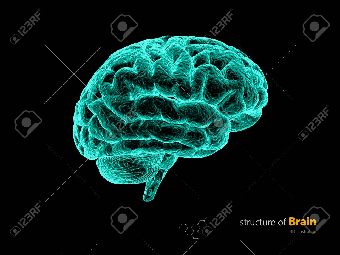 Human Brain, X-ray, Anatomy Structure. Human Brain Anatomy 3d ...