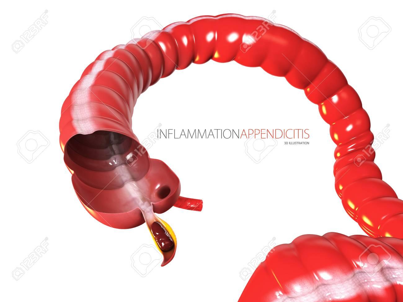 Inflammantion Appendicitis Concept Human Intestine Anatomy As