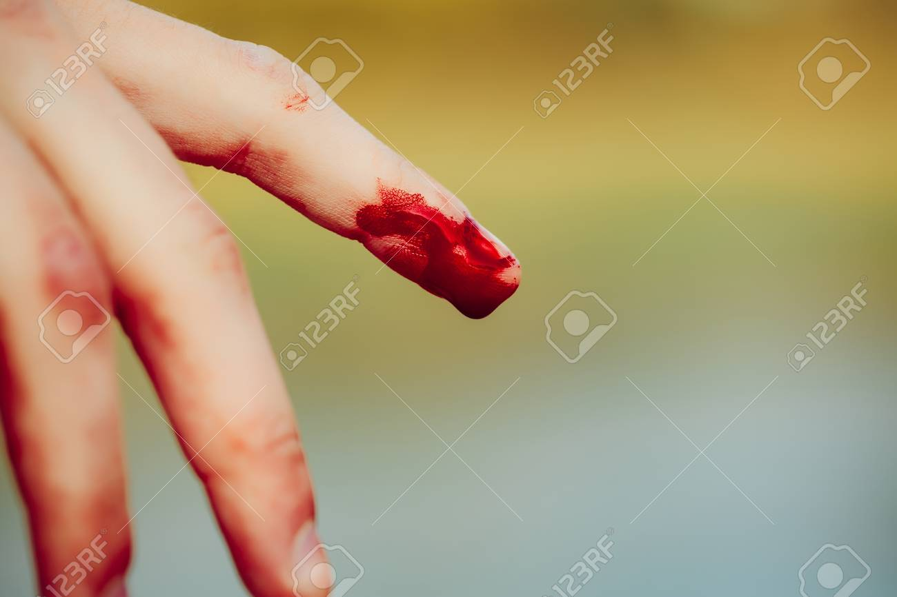 index finger on human hand or palm is cut hurt and bleeding with