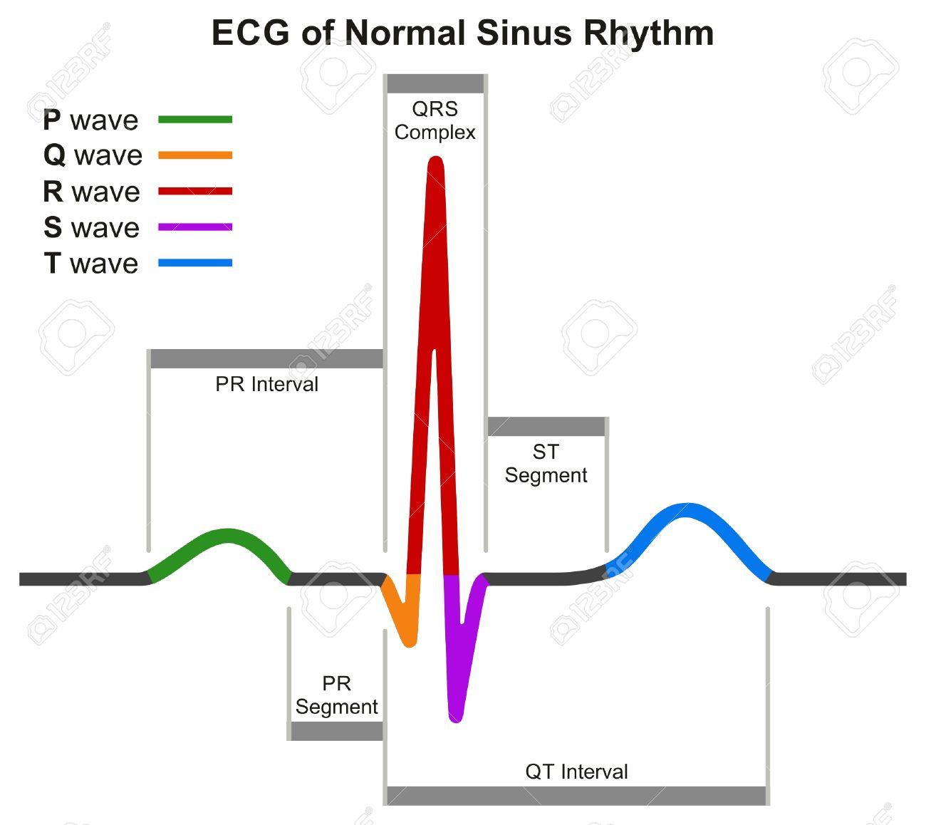 ECG Del Ritmo Sinusal Normal Diagrama Infográfico Que Muestra La ...