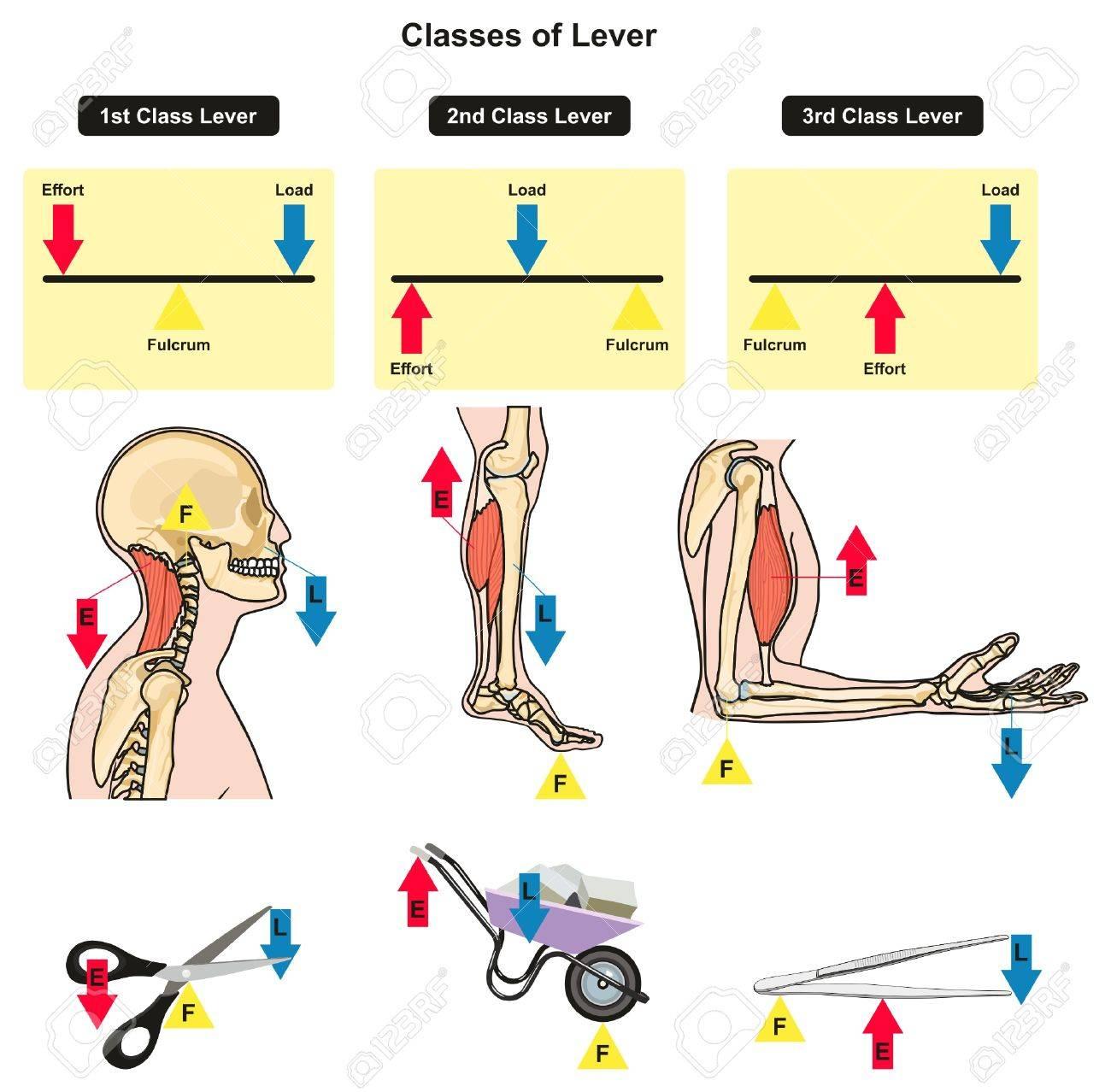 Clases De Palanca Diagrama Infográfico Que Muestra Las Partes Y Los ...