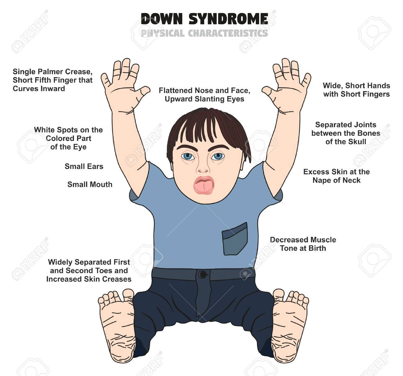 down syndrome physical characteristics infographic diagram showing affected  kid born with this disability for medical science