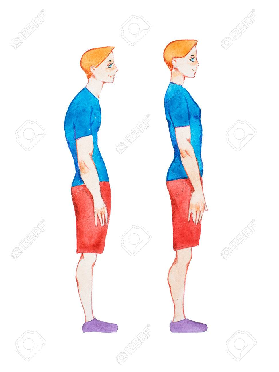 Watercolor illustration of people with right and wrong posture. Man with normal healthy spine and abnormal sick spine in comparison - 80550973