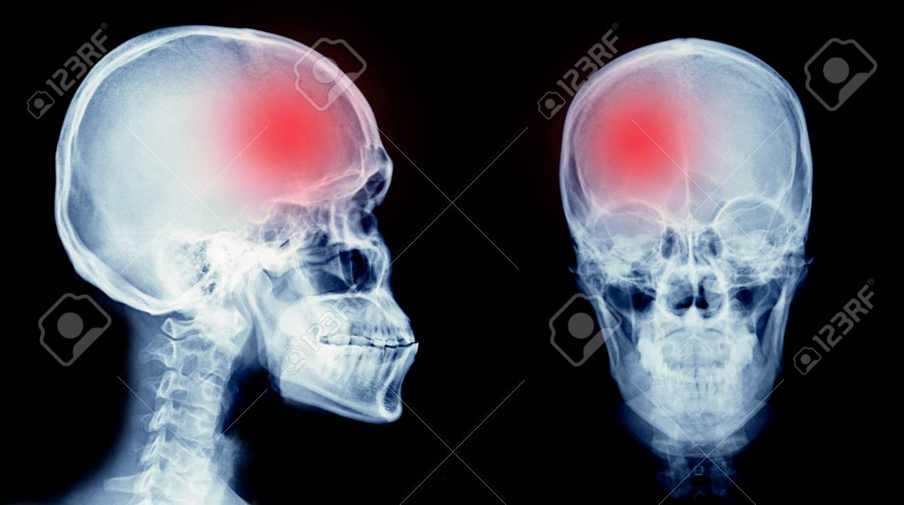 film x ray skull of human with cerebrovascular accident area or hemorrhage stroke stock