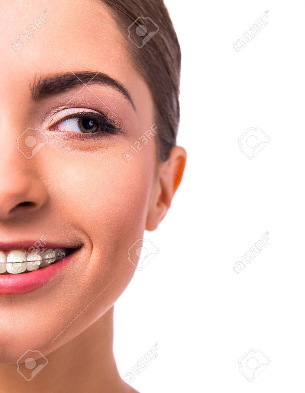 Portrait of a beautiful woman with braces on teeth, isolated on a white background Standard-Bild - 47179021