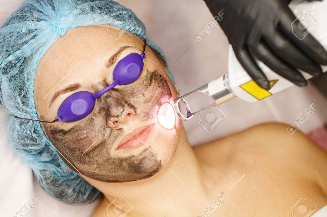 Carbon face peeling. Laser pulses clean the skin of the face. Hardware cosmetology. The process of photothermolysis, warming the skin. Facial skin rejuvenation. - 74637354