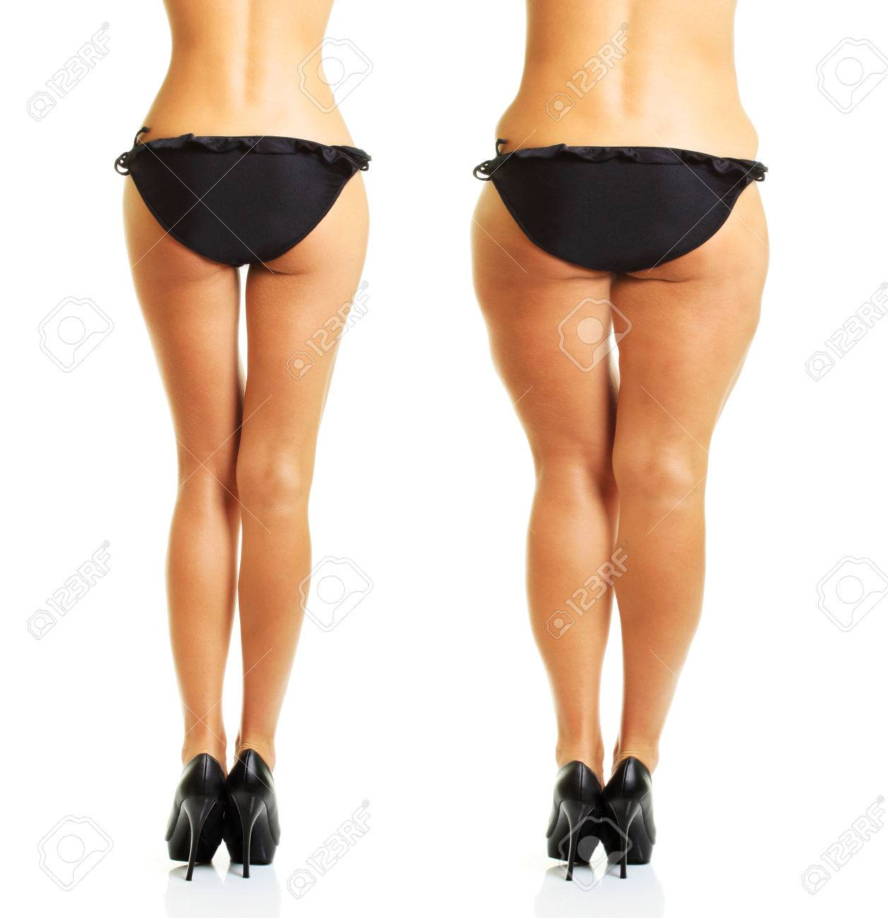 Perfect and fat cellulite woman's body isolated on white background. - 61544437