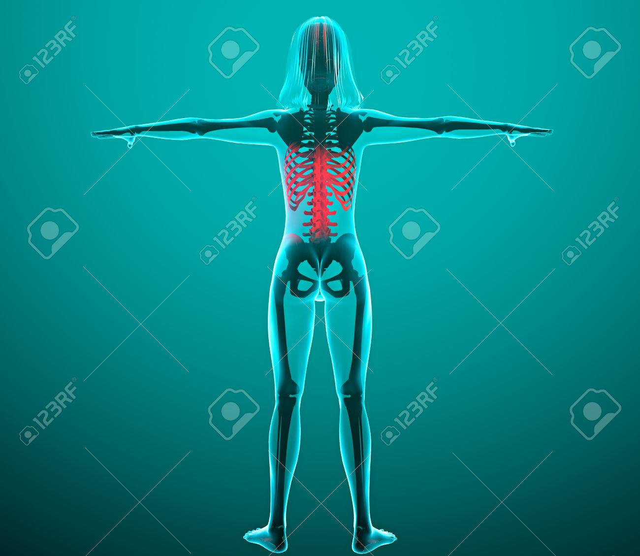 Menschen X-ray Mit Schmerzen In Der Wirbelsäule Und Rippen ...