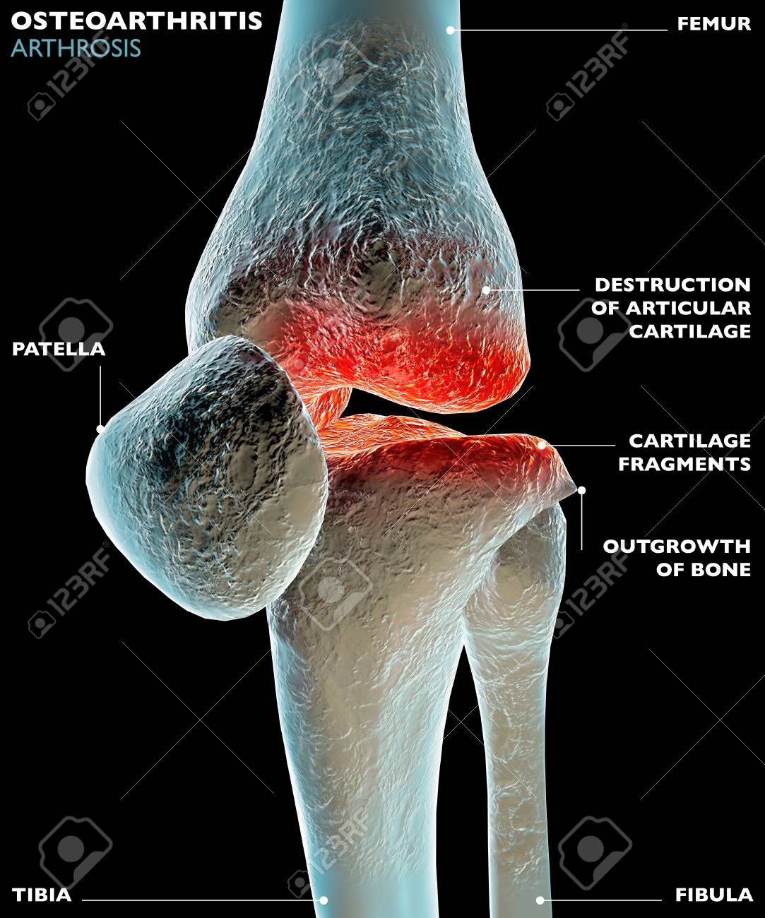 Human Knee Leg Bone Pain Stock Photo Picture And Royalty Free Image