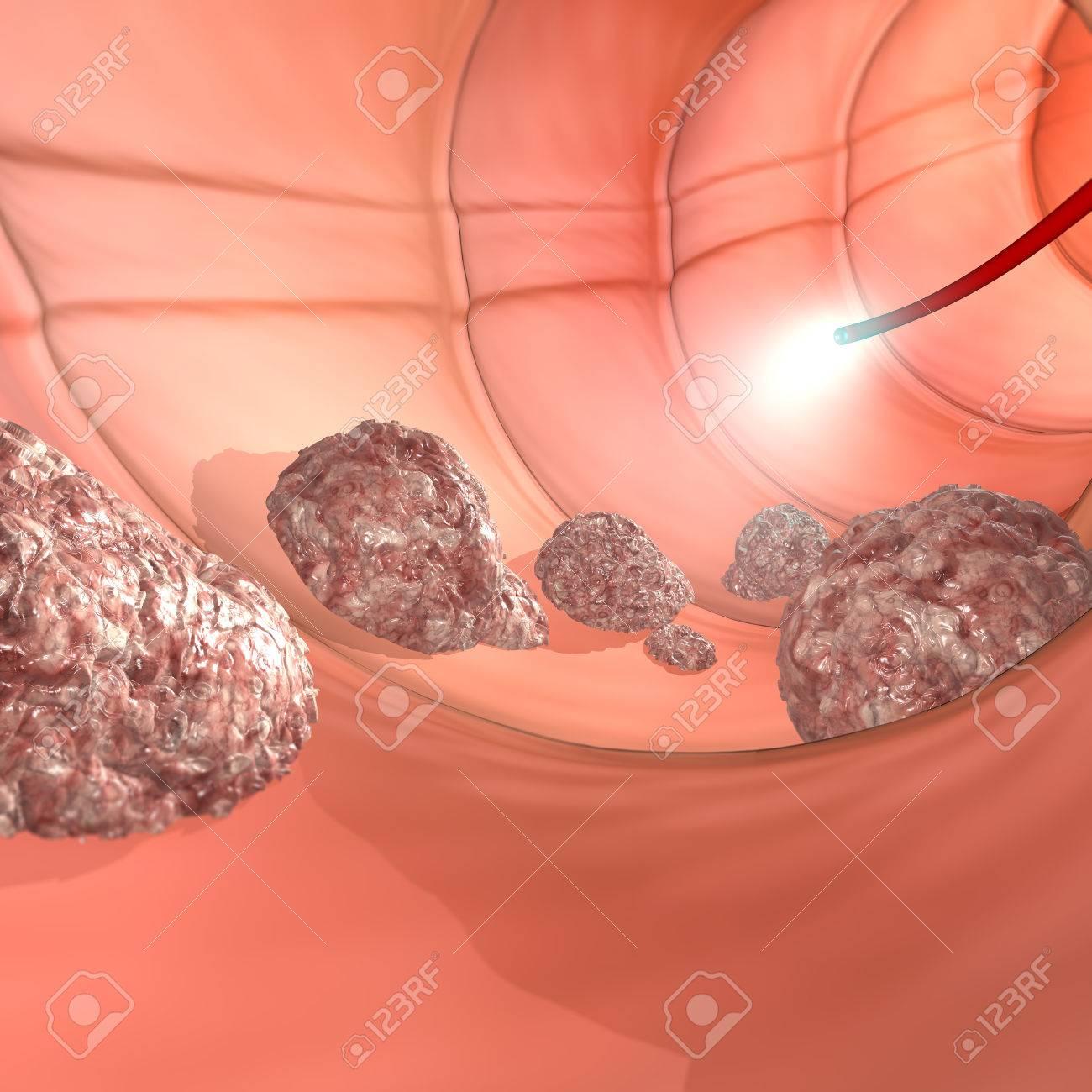 Colonoscopy examination colon digestive system Stock Photo - 28837459