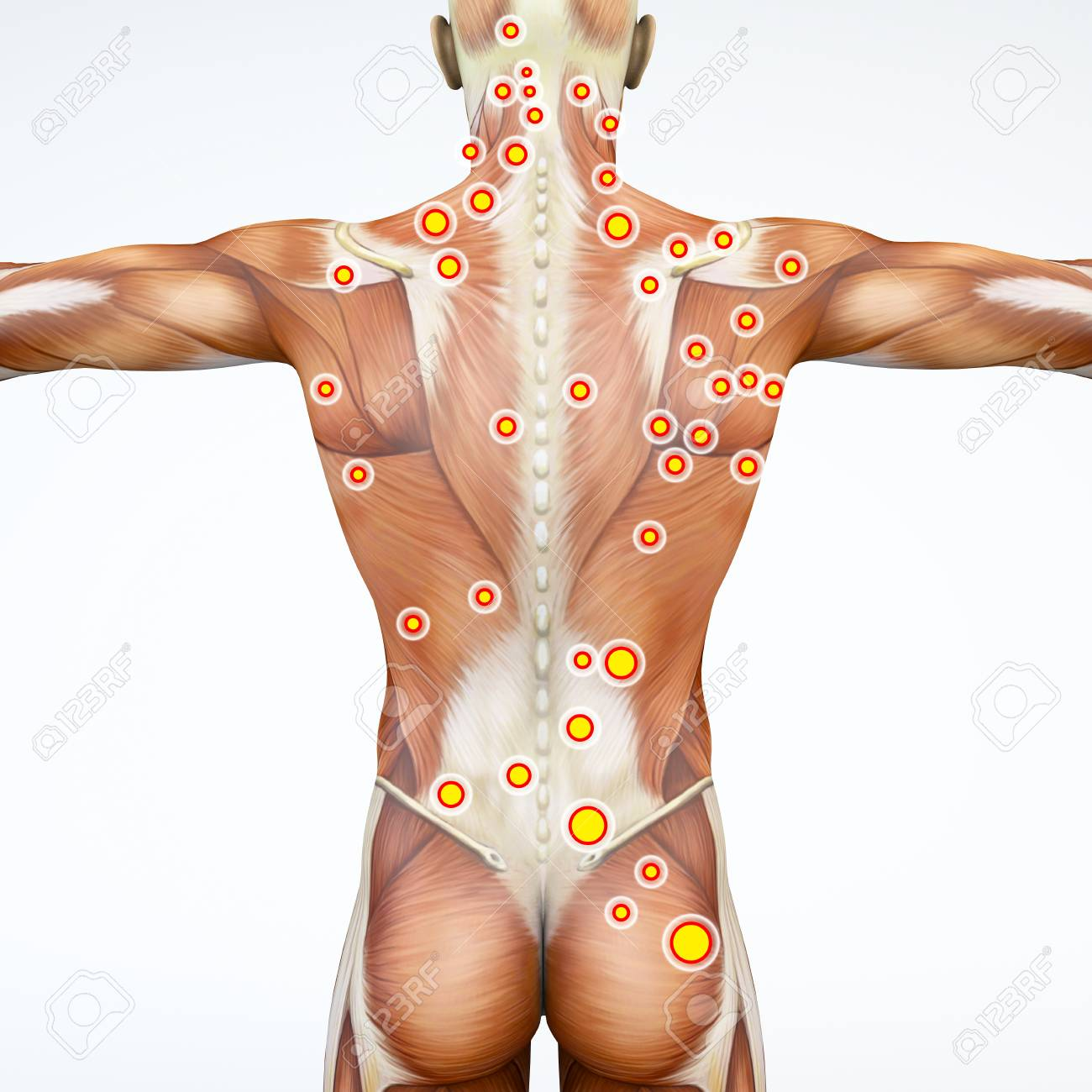 Man And His Trigger Points. Anatomy Muscles. 3d Rendering Myofascial ...