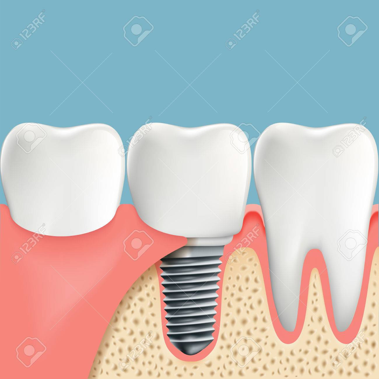 Human Teeth And Dental Implant Anatomy Of The Oral Cavity Stock