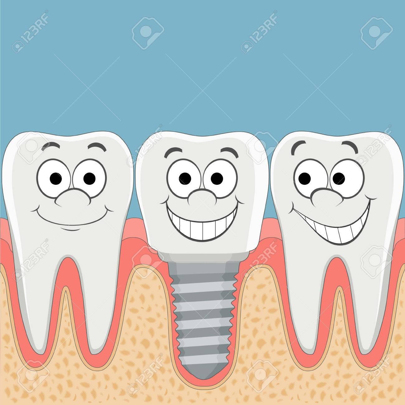 Dientes Humanos E Implantes Dentales. Ilustración Vectorial De ...