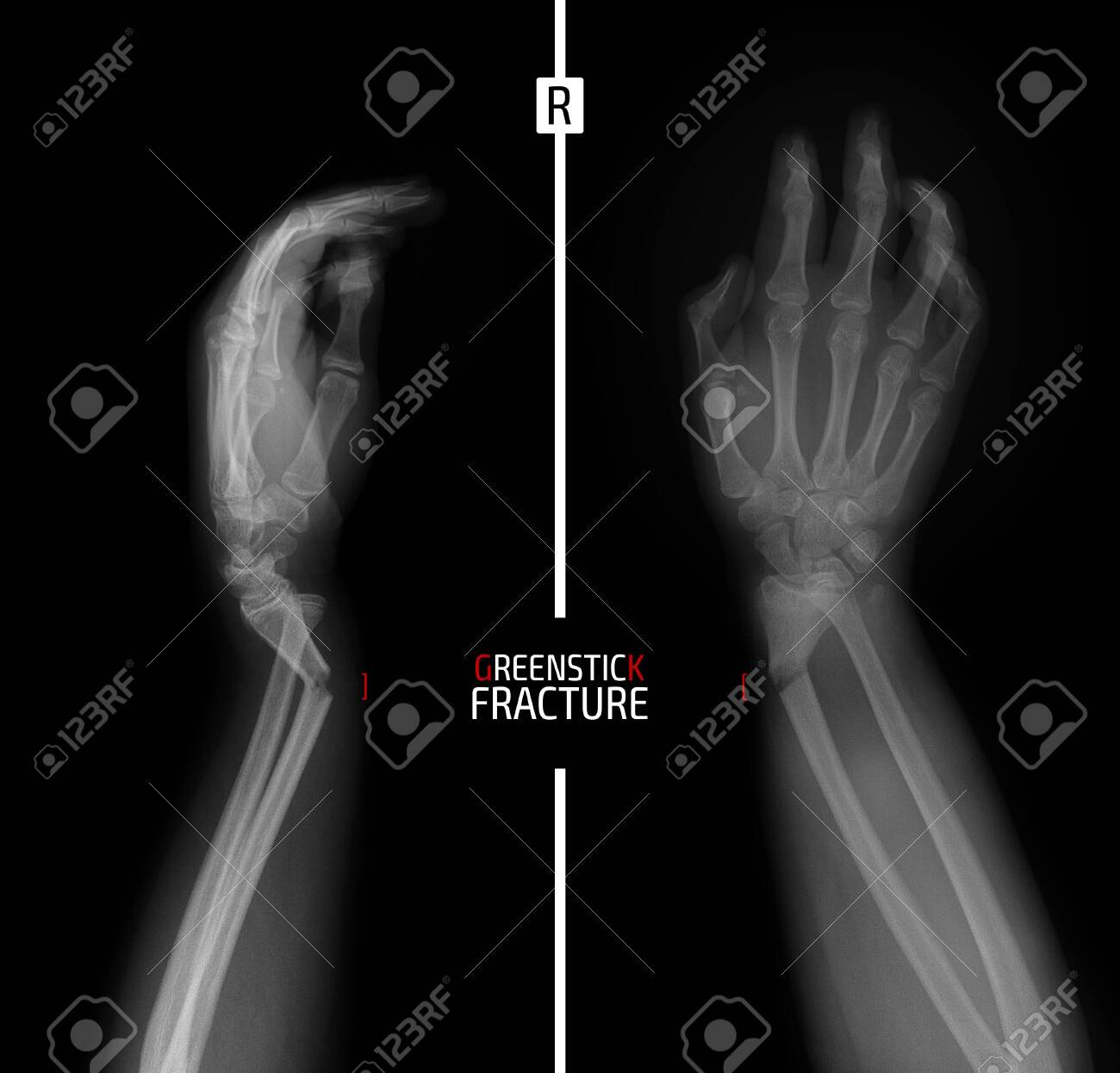 X-ray of the wrist. Greenstick fracture of the radius. Marker. - 151390009