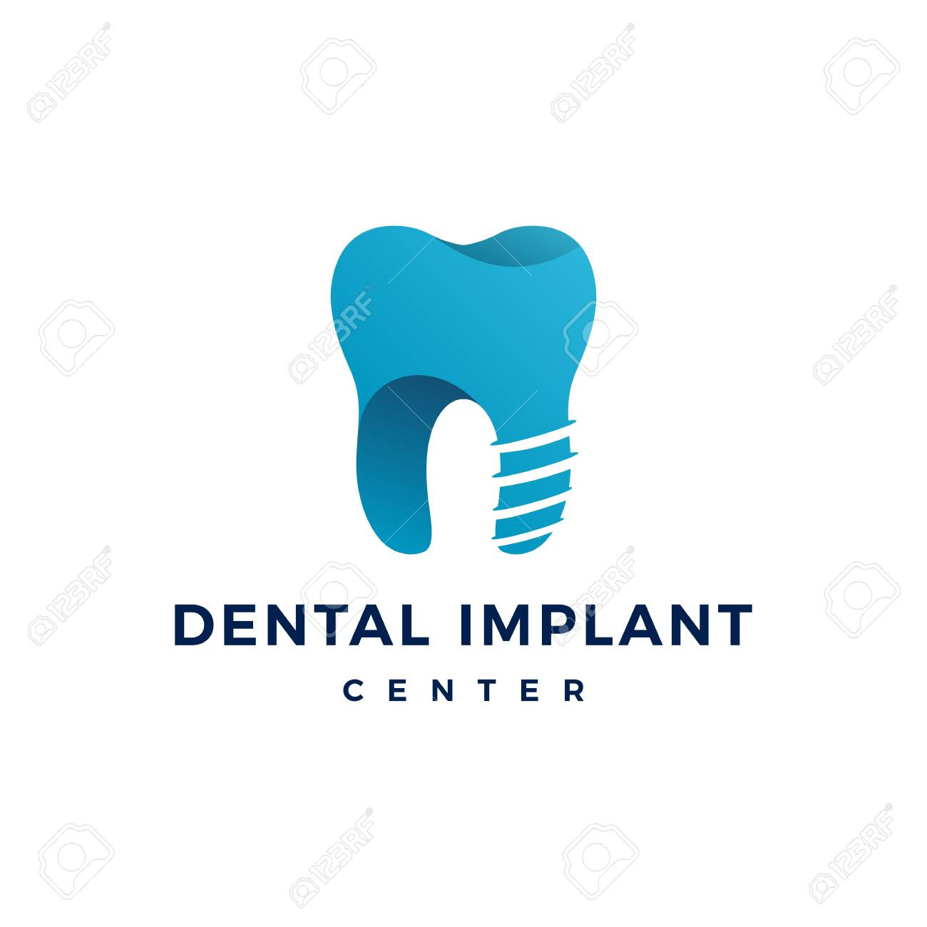 Dental Implant Logo Teeth Tooth Vector Icon Royalty Free Cliparts Vectors And Stock Illustration Image 107801141