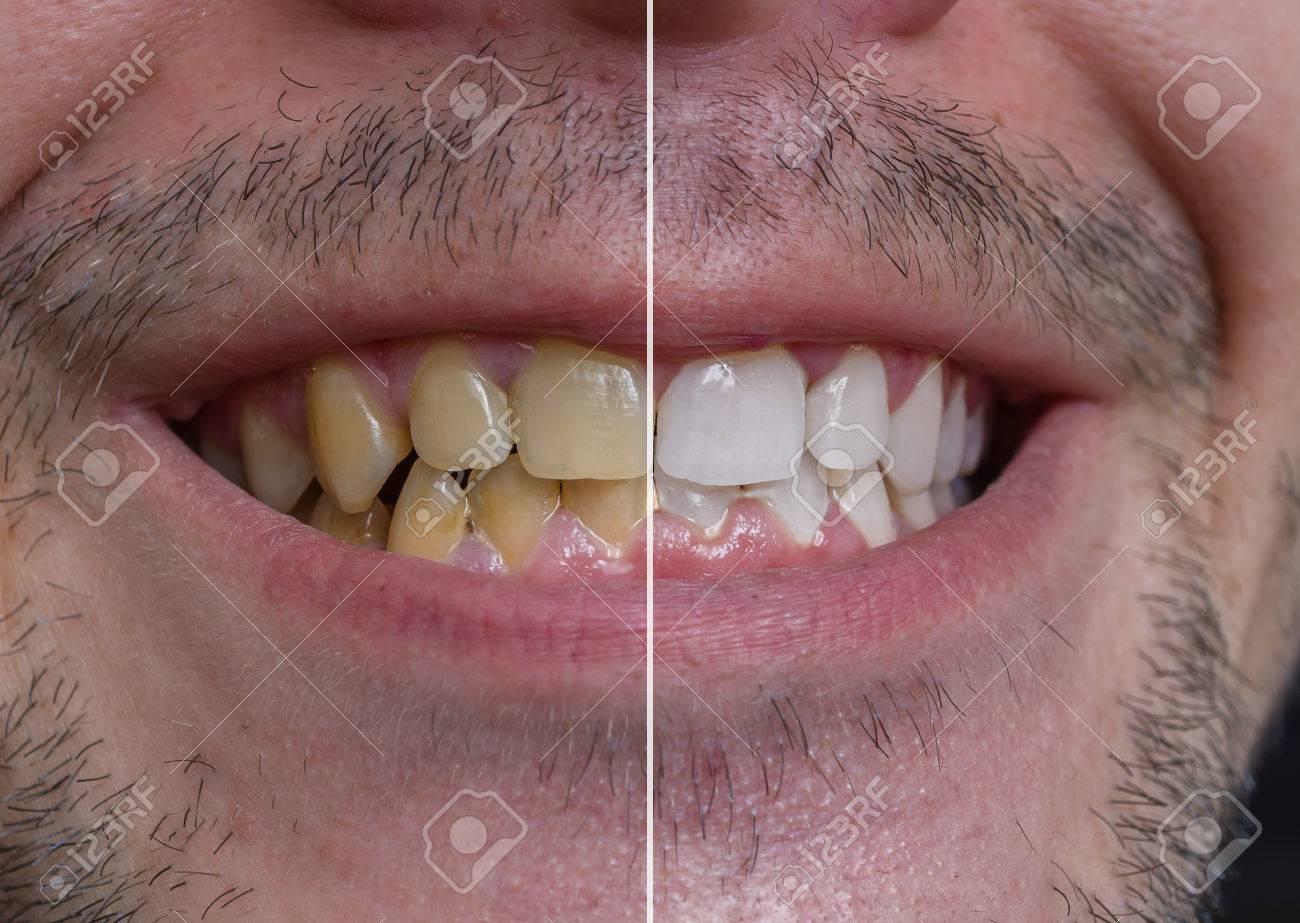 Concept De Blanchiment Des Dents Homme Souriant Avec Des Dents