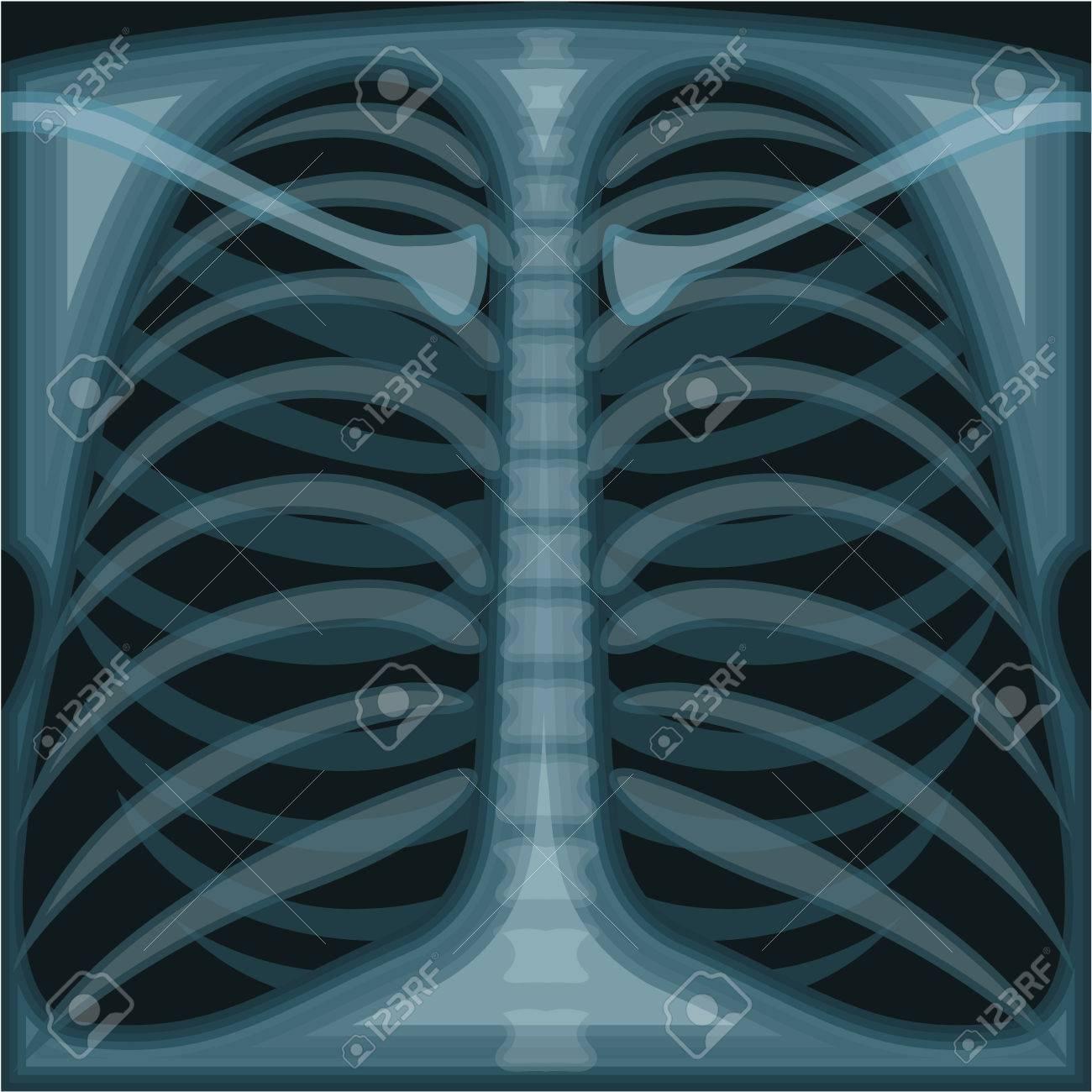 chest x ray vector illustration clip art image royalty free cliparts rh 123rf com x ray clip art free x ray clip art black and white