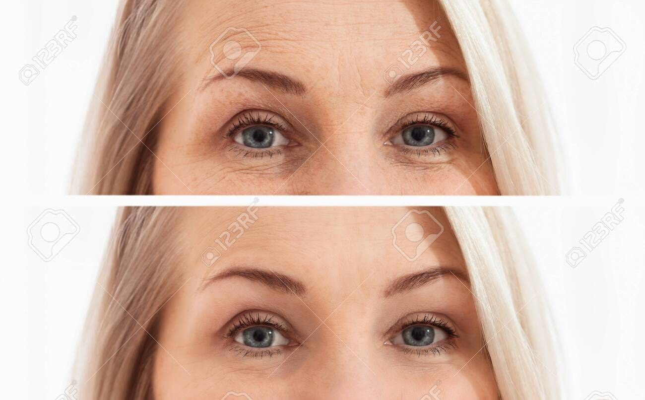 Middle Age Close Up Woman Face And Eyes Before After Cosmetic