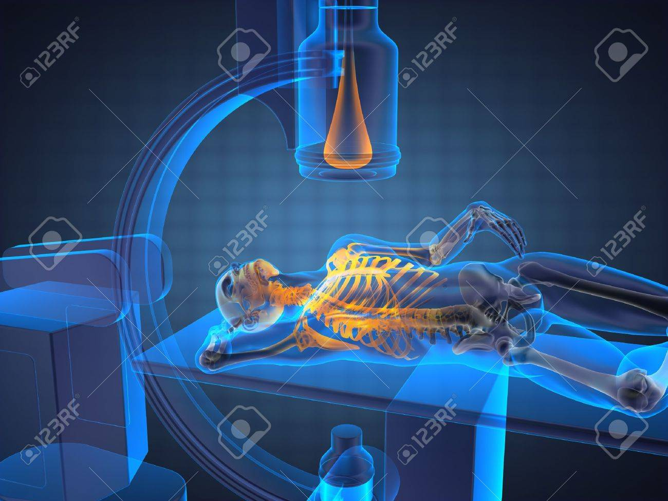 x-ray examination made in 3D graphics Stock Photo - 13035919