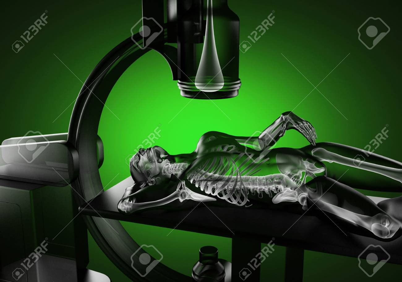 x-ray examination made in 3D graphics Stock Photo - 16910004